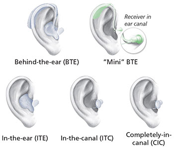 5 types of hearing aids. Behind-the-ear (BTE), Mini BTE, In-the-ear (ITE), In-the-canal (ITC) and Completely-in-canal (CIC)